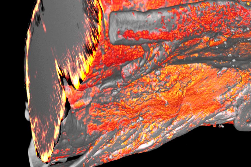 3D Lichtscheiben-Mikroskopie-Aufnahme: Werden Myelinscheiden im Rückenmark beschädigt, häufen sich Mikroglia und Makrophagen (orange) in diesen Proble