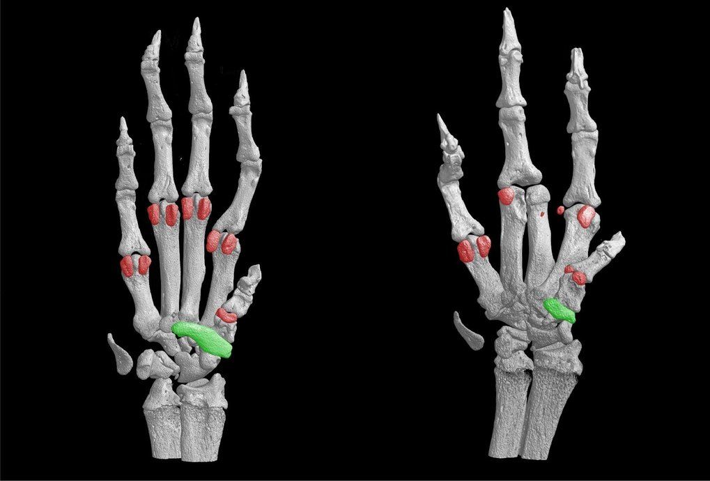 Knochenfärbungen der Vorderpfote einer normalen Maus (links) und dem Krankheitsmodell einer Maus (rechts). Im Modell sind Fehlbildungen der Pfote sich