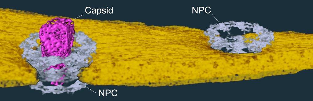 Die Protein-Kapsel des HI-Virus (pink) passiert als Ganzes eine Pore (grau) in den Zellkern (gelb), wo sie zerfällt und das Viren-Erbgut freisetzt.