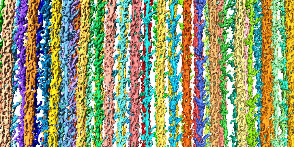 3D-Rekonstruktion des Sarkomers. Farbige Stränge sind einzelne Filamente.