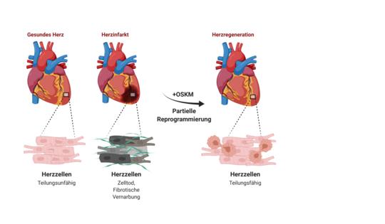 Links:Das gesunde Herz enthält einen Verband von kaum teilungsunfähigen Herzmuskelzellen. Lediglich vereinzelt werden Herzmuskelzellen während der Leb