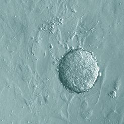 Lichtmikroskopische Aufnahme (Phasenkontrast) einer Kolonie von induzierten pluripotenten Stammzellen (iPS-Zellen), die durch Zugabe zweier Faktoren a