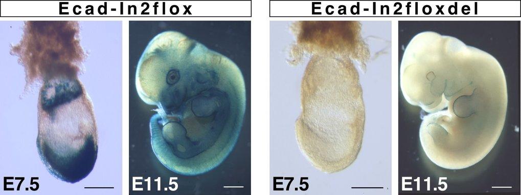 Einfluss von regulatorischen Elementen in Intron 2 des Ecadherin-Gens auf die Expression lacZ-Reportergen-Expression gibt durch Blaufärbung Hinweise a