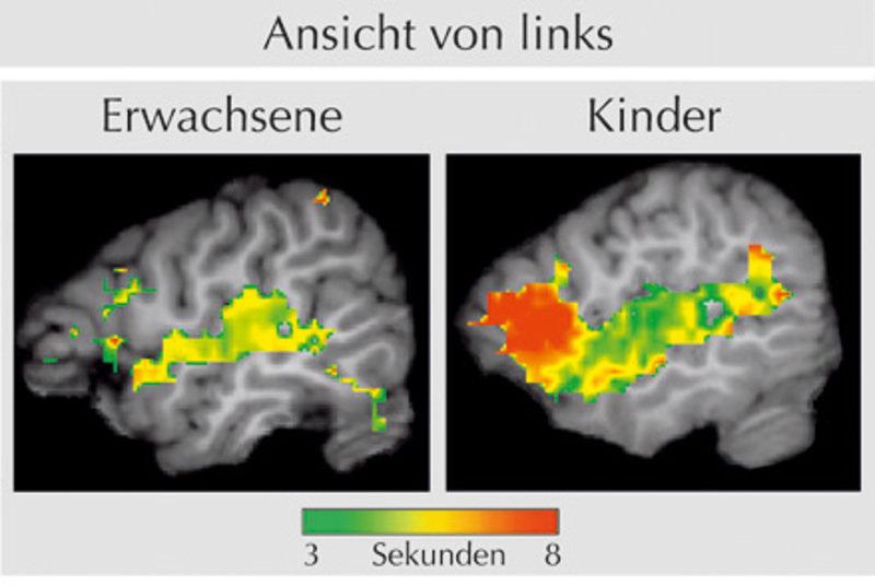 Sprache wächst mit dem Gehirn | Max-Planck-Gesellschaft
