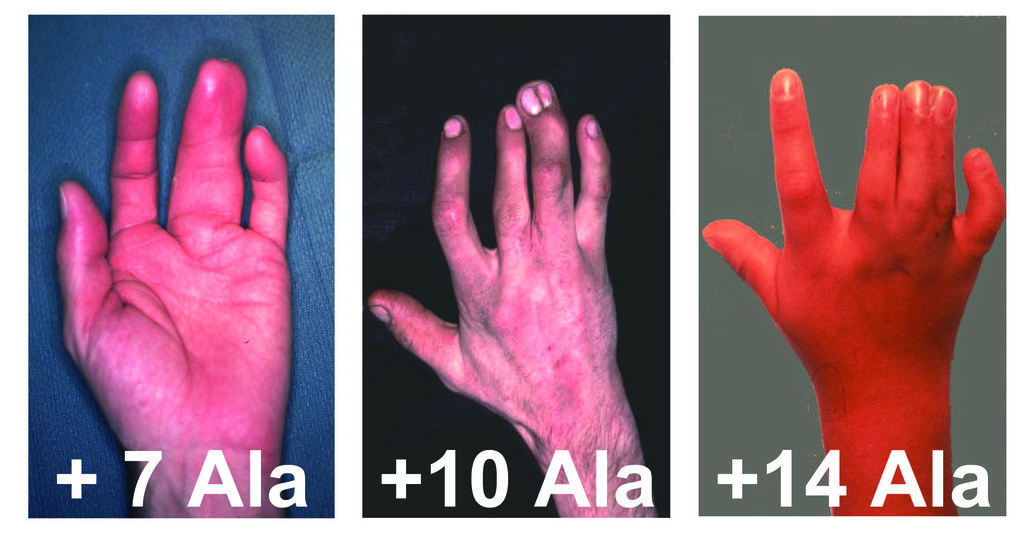 Synpolydaktylie bei Menschen: Hände von Patienten mit zusätzlichen und fusionierten Fingern. Alle Betroffenen weisen eine Mutation unterschiedlicher L