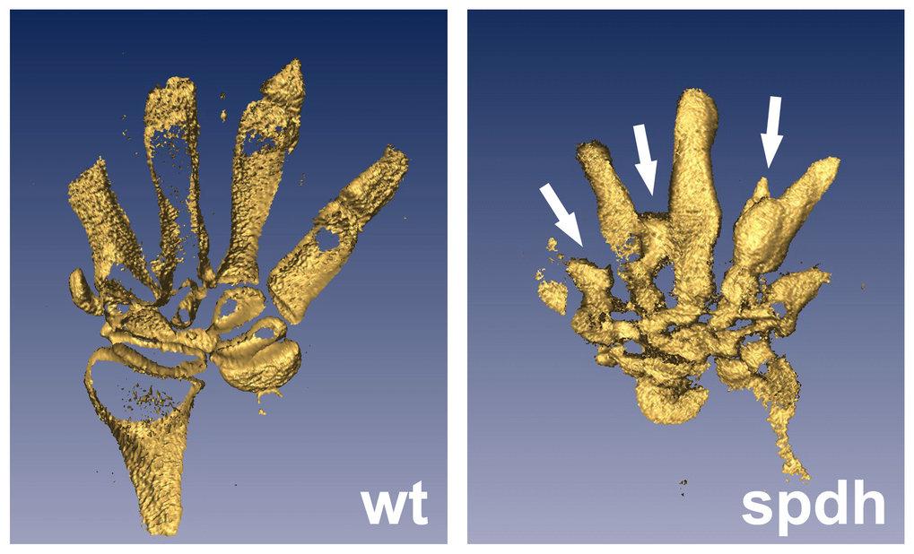 3D-Modell zum Mechanismus von Synpolydaktylie: 3D-Modelle von sich entwickelnden Mäusepfoten zum Embryonalstadium E14.5 (14 ½ Tage nach der Befruchtun