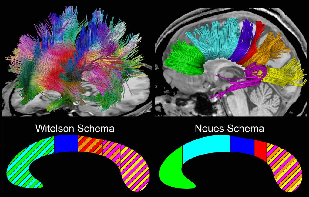 Identifizierung und Zuordnung aller Nervenfaserbahnen des weißen Balkens einer gesunden Versuchsperson mithilfe der Diffusionstensor-MRT. Die Messunge