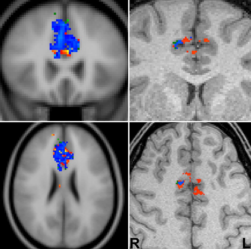 Funktionelle MRT des anterioren zingulären Kortex (ACC) einer gesunden Versuchsperson bei einer Go-Nogo-Aufgabe, die motorische Fehlentscheidungen pro