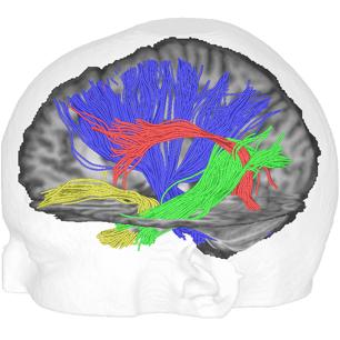Faserbahnen im menschlichen Gehirn, rekonstruiert mit Traktographie aus diffusionsgewichteter Magnetresonanztomographie. Blau: cortico-spinaler Trakt,