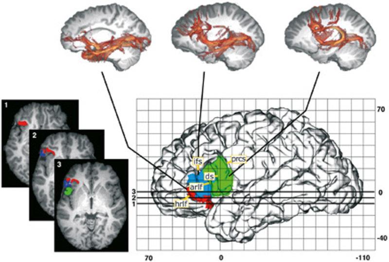 Funktio-anatomische Parzellierung des Broca-Gebietes auf der Basis von Verbindungsmustern. Oben sind die typischen Verbindungsmuster der drei Untergeb