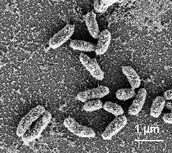 Bakterien der Art Deleya halophilia bilden eine natürliche Schicht aus CaCO<sub>3</sub> (rasterelektronenmikroskopische Aufnahme).