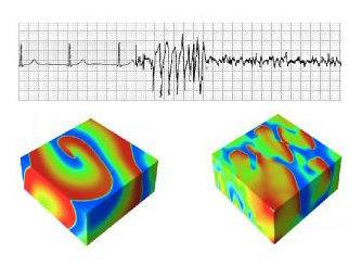 Oben:  Typisches Elektrokardiogramm (EKG) mit Übergang von normalem Herzrhythmus über eine kurze tachykardische Episode zu Fibrillation, einer Arrhyth