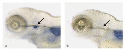 Genetische Defekte stören die Thymusentwicklung. Die Aktivität eines Gens lässt sich biochemisch nachweisen: In Abb. 2a sind die T-Zellen im Thymus (P