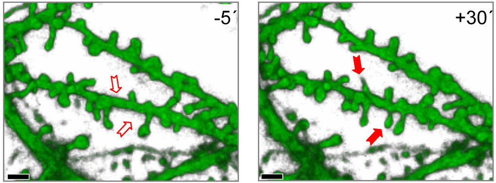 Intensive Stimulation (Langzeitpotenzierung, LTP) führt zur Bildung von dornenartigen Ausstülpungen an Nervenzellen. Links ein Ausschnitt aus den Dend