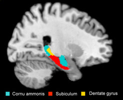 <p>Certain regions of the hippocampus are shrinking in depressive patients who are carriers of the risk allele (CA: cornu ammonis, SUB: subiculum, DG: dentate gyrus).</p>