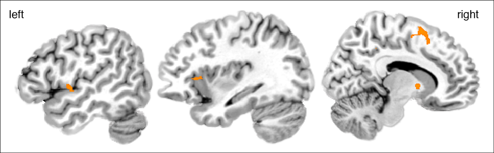 Increased activation in the frontal operculum (left), the pre-supplementary area (middle) and the anterior insula (right) when listening to melodies judged as being improvised.
