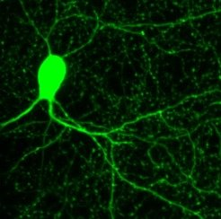 The synapses of this nerve cell inhibit the flow of information of other cells