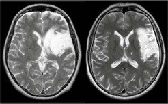 <b></b>MRI was used to assess the exact brain areas affected in each patient. In both images, lesions can be seen in the left brain hemisphere (here on the right-hand side of each brain image). The image of the patient on the left also shows damage to the basal ganglia.
