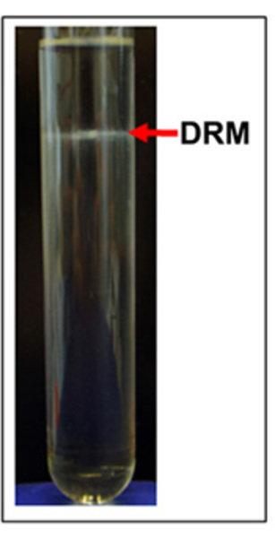 Biochemisch aufgereinigte Sterol-reiche Detergenz-resistente Membranfraktionen (DRM).