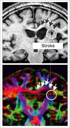 Stroke damage (white circle) can destroy the communication channels within the brain. This depiction of stretches of fibres show that the damage can also affect fibres between the hemispheres (red) which whither in the course of the illness, thus hindering the exchange of information between the hemispheres.