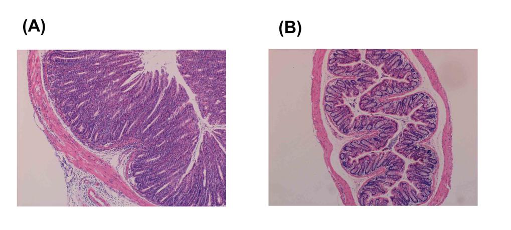 Abb. 1:Regulatorische T-Zellen schützen vor Entzündung. Die Abbildung zeigt Hematoxilin-Äosin-Färbung der Därme von immundefizienten Mäusen, denen na