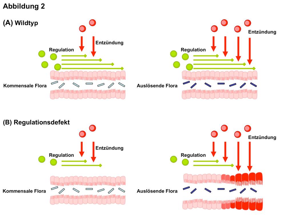 Abb. 2:Zusammenhang zwischen der genetischen Anfälligkeit und einer auslösenden Mikroflora bei der Entstehung der Darmentzündung A) Unter normalen Um