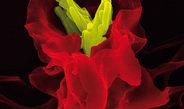 Für eine eindeutige Krankheitsdiagnose sind verschiedene Kombinationen von Biomarkern erforderlich