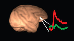 Neurons in the lateral prefrontal cortex represent the content of consciousness. The red trace depicts neural activity (neuronal discharges) in the lateral prefrontal cortex when a stimulus is consciously perceived for 1 second while the green trace depicts neural activity when the same stimulus is suppressed from awareness.