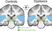 Dyslexia caused by signal processing in the brain.