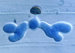 Microscope image showing a fungal hypha that penetrated an epidermal cell of Arabidopsis.