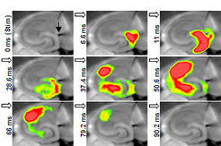 Filmstrip of an activity wave through the hippocampus. The activity wave is triggered by stimulating the input region with a microelectrode (black arrow) and recorded using voltage-sensitive dyes. Warmer colors represent stronger neuronal activity.