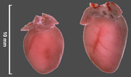 Scientists prevent heart failure in mice