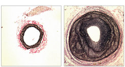 Cross-section of a blood vessel of a normal mouse (left) and a mouse without G<sub>12</sub>/G<sub>13</sub> proteins (right). In the genetically modified mouse, the muscle cells of the vessel wall begin to grow excessively, thus obstructing the blood flow.