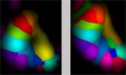 Auch im erwachsenen Gehirn kommt es zur massiven Neuverdrahtung von Nervenzellen, um einen Ausfall im Informationsfluss zu kompensieren