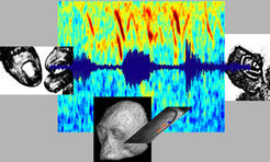 Sensory impulses rarely occur on their own, but rather are created by interaction with our environment. Noises result when we manipulate an object with our hands - illustrated here in the picture by a sound wave and its frequency spectrum. The information about these impulses is taken in by the ear and the sense of touch, and integrated somewhere in the brain. We can know where, exactly, using functional imaging.