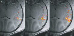 The auditory cortext in action. The picture was created using functional magnetic resonance imaging. The colored points indicate regions which react with strong activation to particular impulses. A: tactile stimulation of the hand. B: auditory stimulation. C: simultaneous tactile and auditory stimulation. In C there is more activity than in B, which suggests that the processing of the auditory stimulus is influenced by the tactile stimulation.