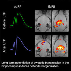 The long-term strengthening of stimulus transmission to the synapses (LTP) in the hippocampus results in the far-reaching reorganization of the neuronal network. The functional MRI (fMRI) images show which areas of the brain are well-supplied with blood and, therefore, active.