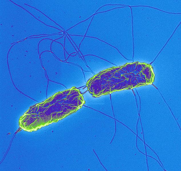 salmonella enternica S enterica subespecie enterica puede clasificarse en 1547 serovariedades o serotipos diferentes las serovariedades se distinguen por la reacción con antisueros.