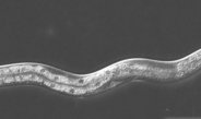 Hormone receptors may regulate the effect of nutrition on life expectancy not only in roundworms, but perhaps also in human beings.