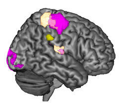 View of the right brain hemisphere: during incongruent experiments, the supramarginal gyrus (yellow) is particularly connected to the dark purple brain areas. The light purple areas are activated through tactile stimuli on the hand.
