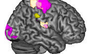 The right supramarginal gyrus plays an important role in empathy.