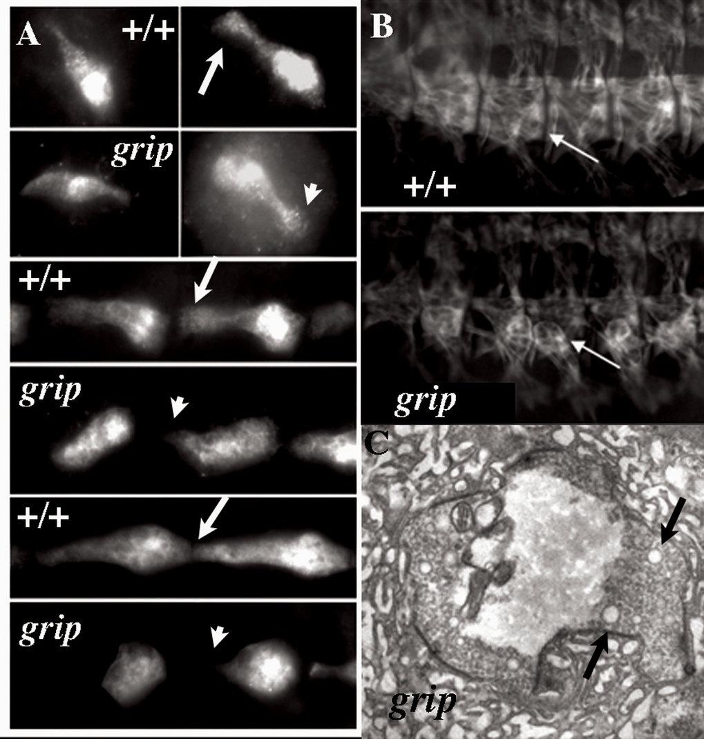 """<i>Drosophila</i> Grip"" steuert die Wegfindung embryonaler Muskelzellen: (A) Die Anheftung embryonaler Muskelzellen an die Epidermis im Wildtyp (+/+)"