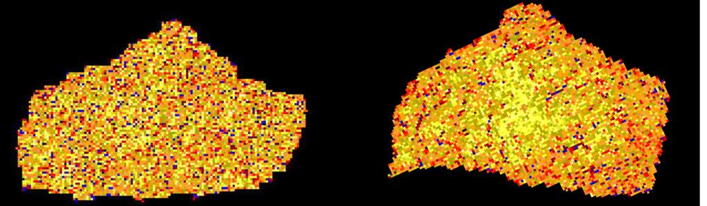 Segmentierte Speiche (distaler Radius) für die Bilder aus Abbildung 3. Die Farbcodierung der Pixel entspricht den Werten der Skalierungsindizes. Die V