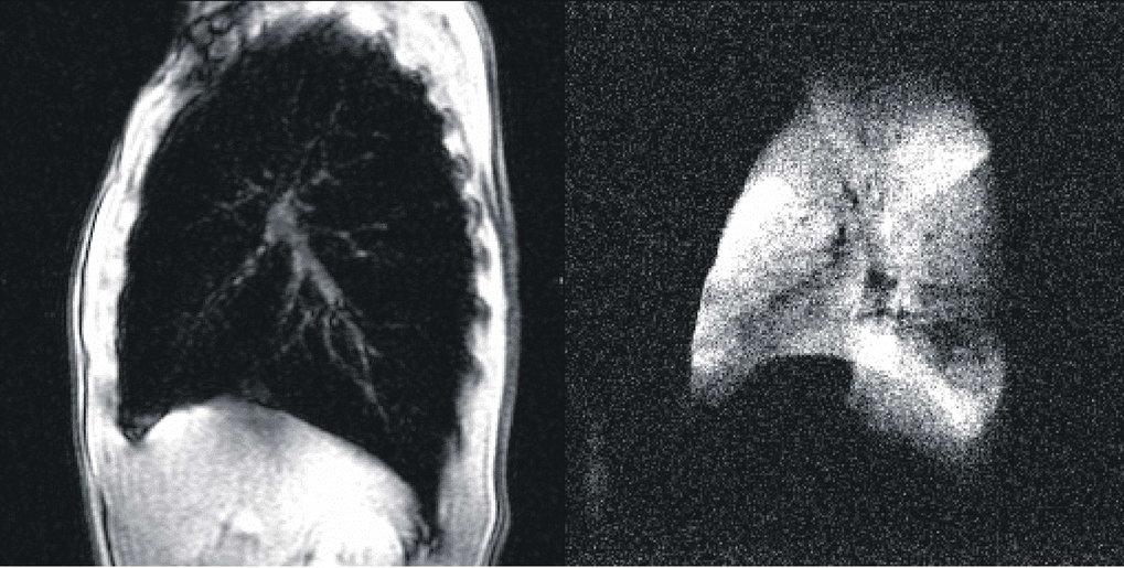 Links: Normales MRI-Schnittbild des Brustraums (links im Bild die Brust, rechts der Rücken) eines gesunden Probanden. Die Lunge erscheint bis auf die