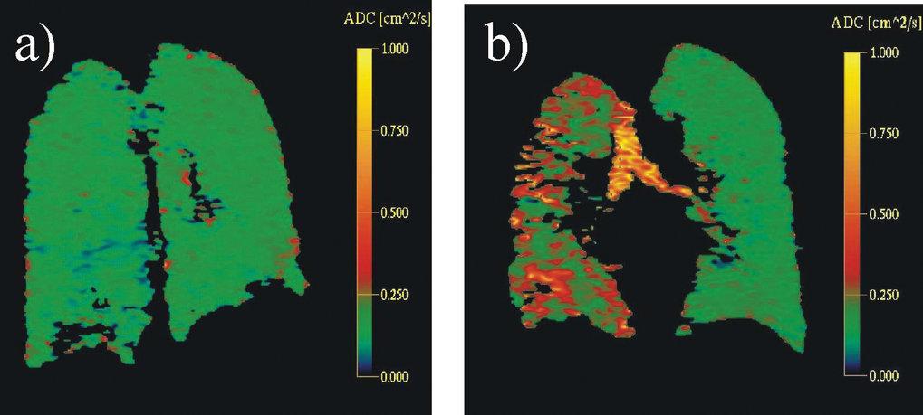 Bilder des lokalen Diffusionskoeffizienten: a) gesunder Proband  b) Patient mit einem Emphysem im linken Lungenflügel (rechter ist transplantiert). Di