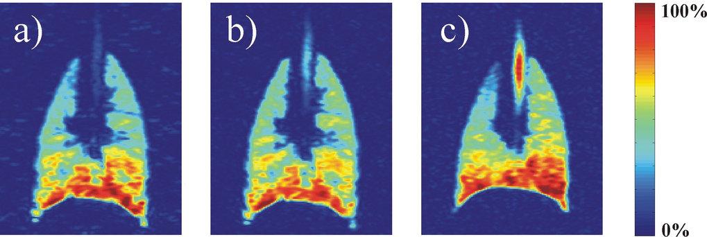 3He in der Lunge eines Hausschweins, das zuvor mit einem inerten Puffergas beatmet wurde. a) 4He als Puffergas, b) Stickstoff und c) Schwefelhexafluor