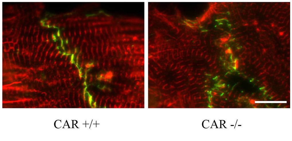 Kultivierte embryonale Kardiomyozyten von Wildtyp (CAR<sup>+/+</sup>) und CAR-defizienten (CAR<sup>-/-</sup>)-Mäusen. Zwei Antigene sind mit verschied