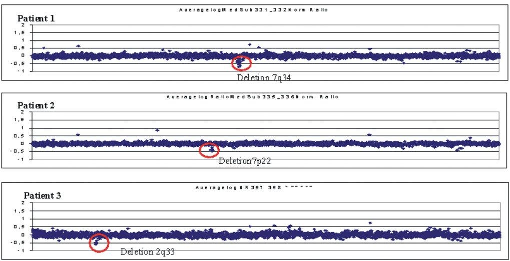 <b>Nachweis submikroskopischer Deletionen bei 3 Patienten mit 'idiopathischer' geistiger Behinderung durch Matrix-CGH</b><br> DNS von Patienten und ge
