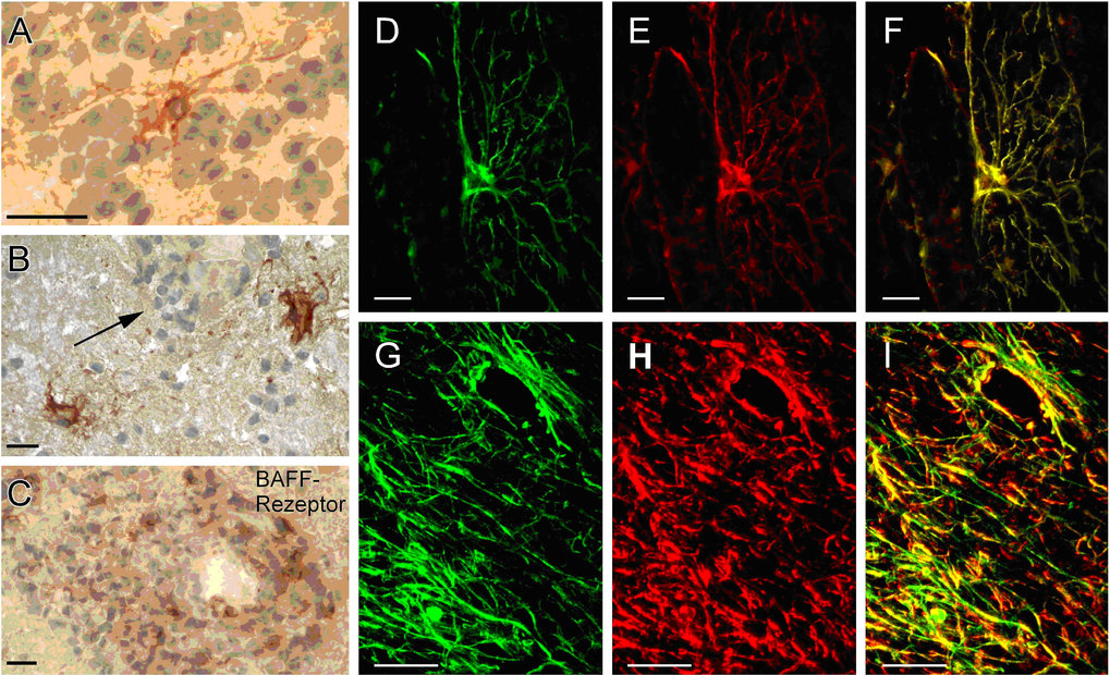 <b>BAFF-Expression im zentralen Nervensystem. </b>Gewebeschnitte von gesundem Hirn und Entzündungsherde bei MS wurden mittels Immunhistochemie gefärbt