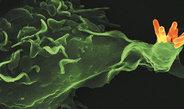 Wissenschaftler fordern eine globale Strategie für die Entwicklung neuer Tuberkulose-Impfstoffe